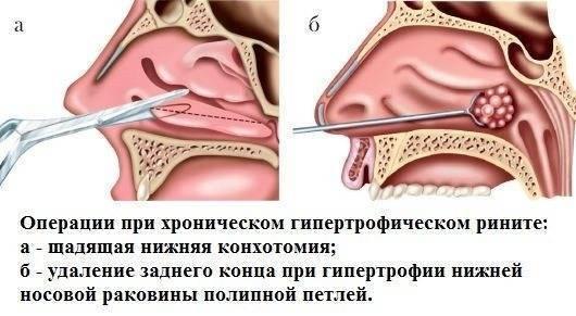 Эффективное лечение хронического атрофического ринита