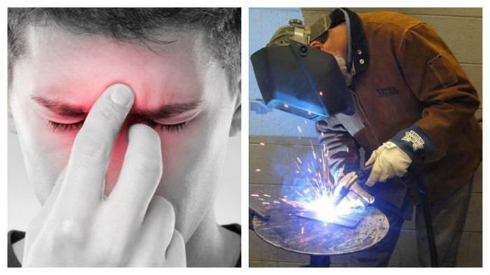 Что делать, если произошел ожог глаз при работе сваркой