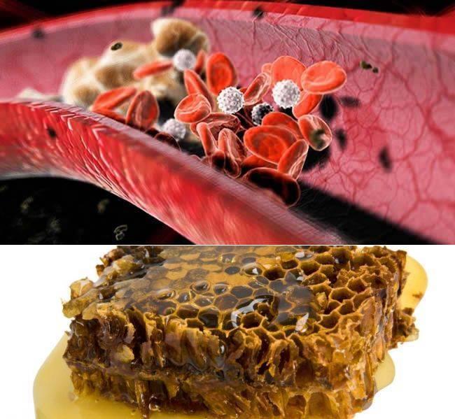 семечки при повышенном холестерине
