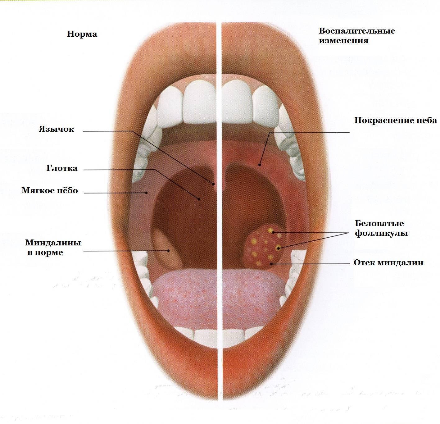 Симптомы и лечение хронического ларингита у взрослых