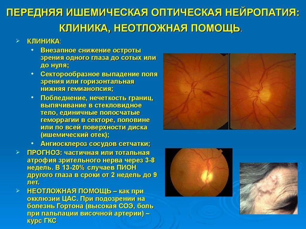 Оптическая нейропатия — википедия с видео // wiki 2