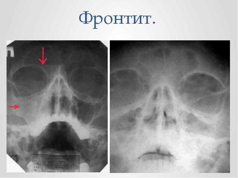 Фронтит: симптомы, причины, лечение. чем опасно это заболевание?