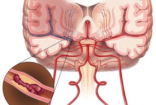что такое атеросклероз сосудов головного мозга