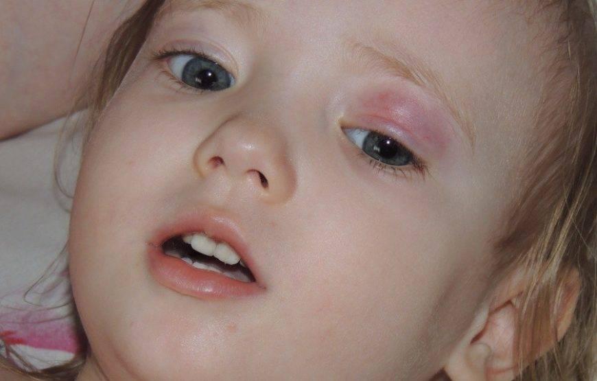 опух глаз у ребенка причины