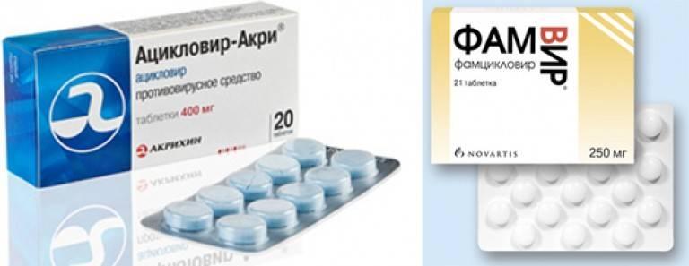 таблетки при генитальном герпесе
