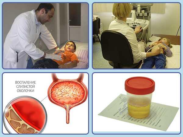 Цистит у ребенка в 3 года: первая помощь, лечение и причины