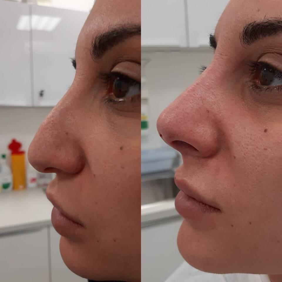 безоперационное уменьшение носа