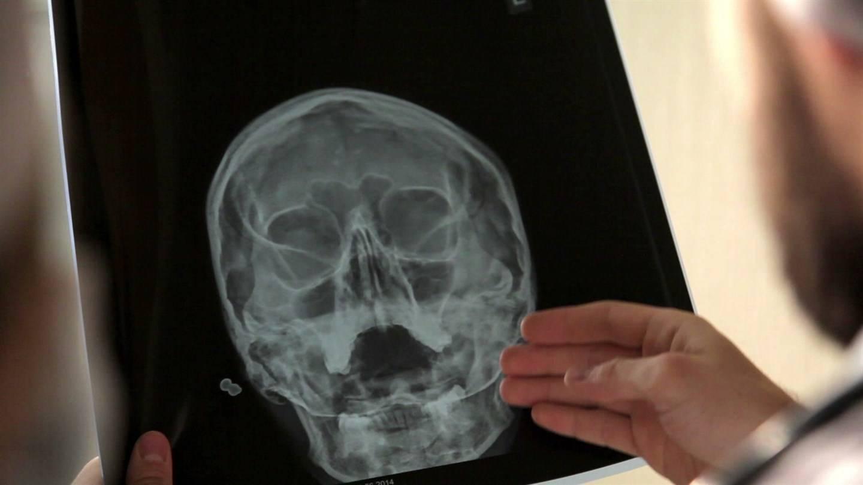 Пневматизация пазух носа: опасно ли это