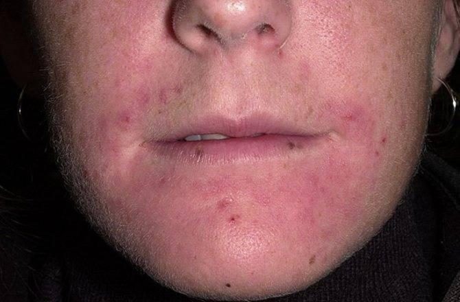 пероральный дерматит на лице чем лечить