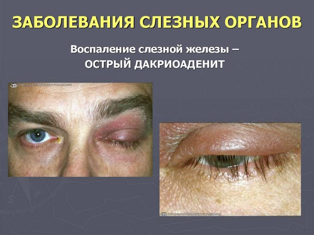 Что такое дакриоаденит, или воспаление слезной железы, и как его лечить у ребенка и взрослого
