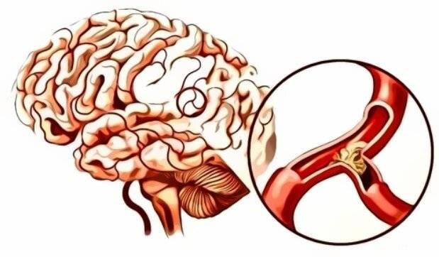 препараты при церебральном атеросклерозе