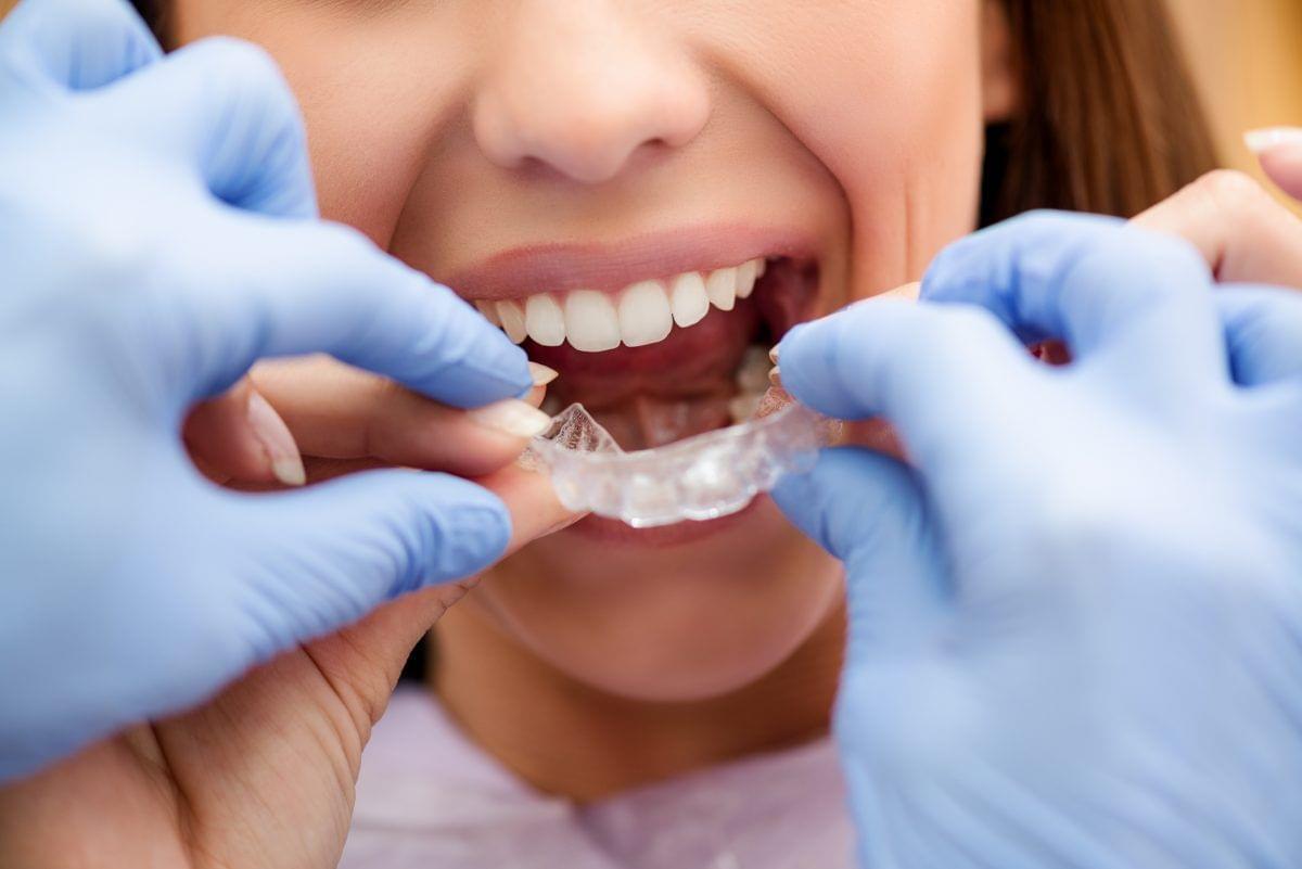 Кто такой стоматолог-ортодонт: чем занимается и какие проблемы решает