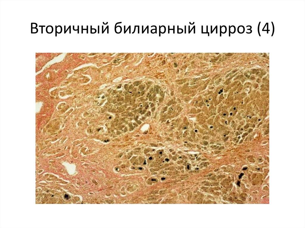 билиарный цирроз печени симптомы и лечение