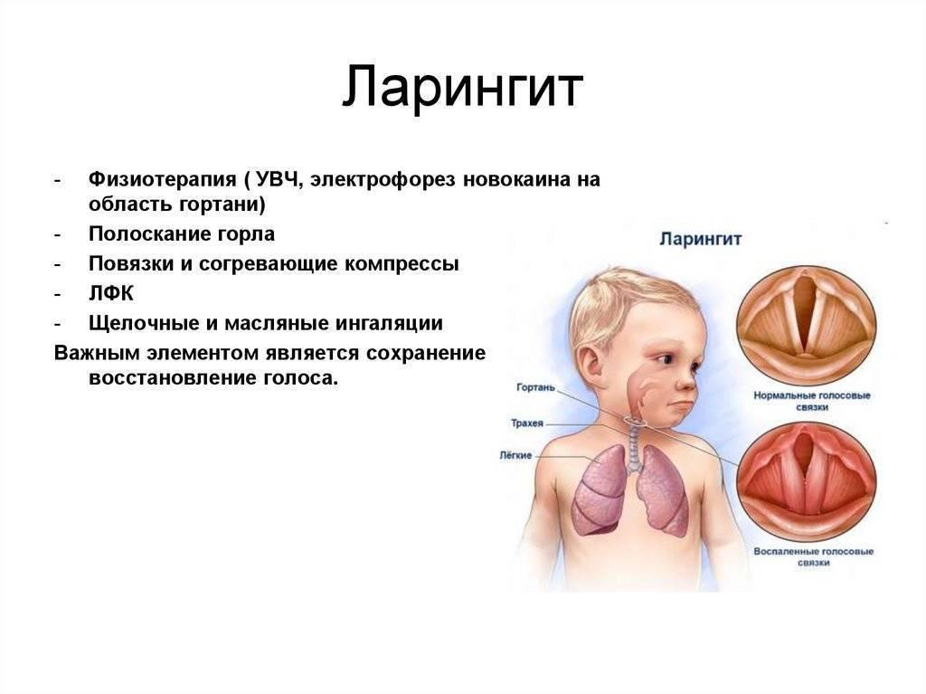 эффективное лечение ларингита у взрослых