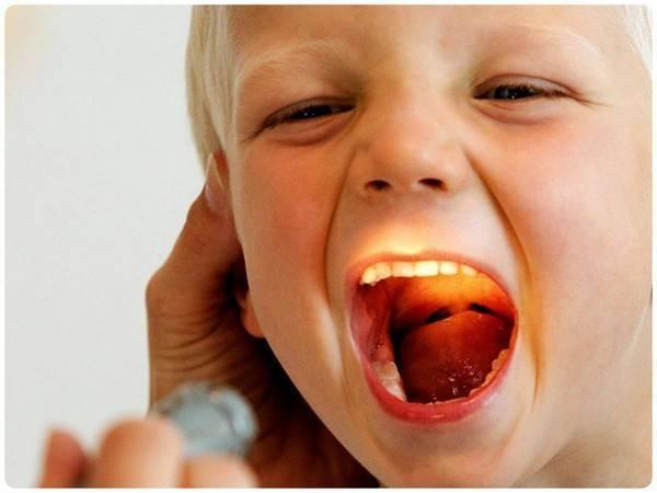 болит горло температура 38 у ребенка