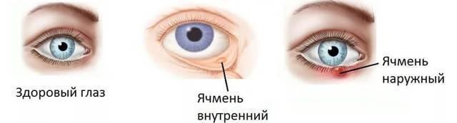 Ячмень при гв - запись пользователя татьяна (tanyaokuneva38) в сообществе грудное вскармливание в категории здоровье мамы - babyblog.ru