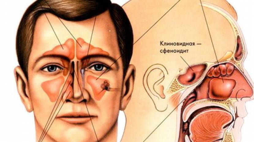 Сфеноидит – лечение и симптомы хронического воспаления у взрослых