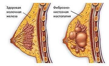 Мастопатия. причины, симптомы и признаки, диагностика и лечение патологии :: polismed.com