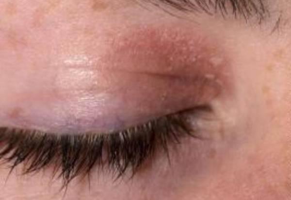 Чешутся глаза в уголках около переносицы, краснеют, заложен нос. причины, лечение, что это значит