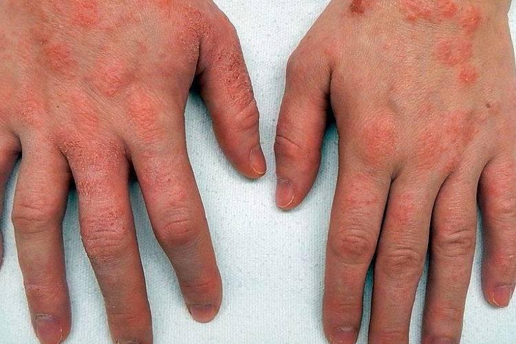 Дерматит – 15 трав для эффективного лечения