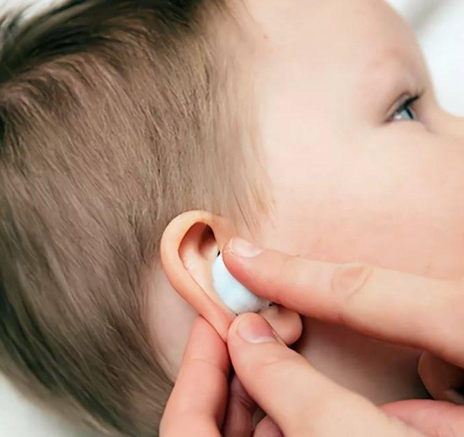 Причины выделений из уха у ребенка