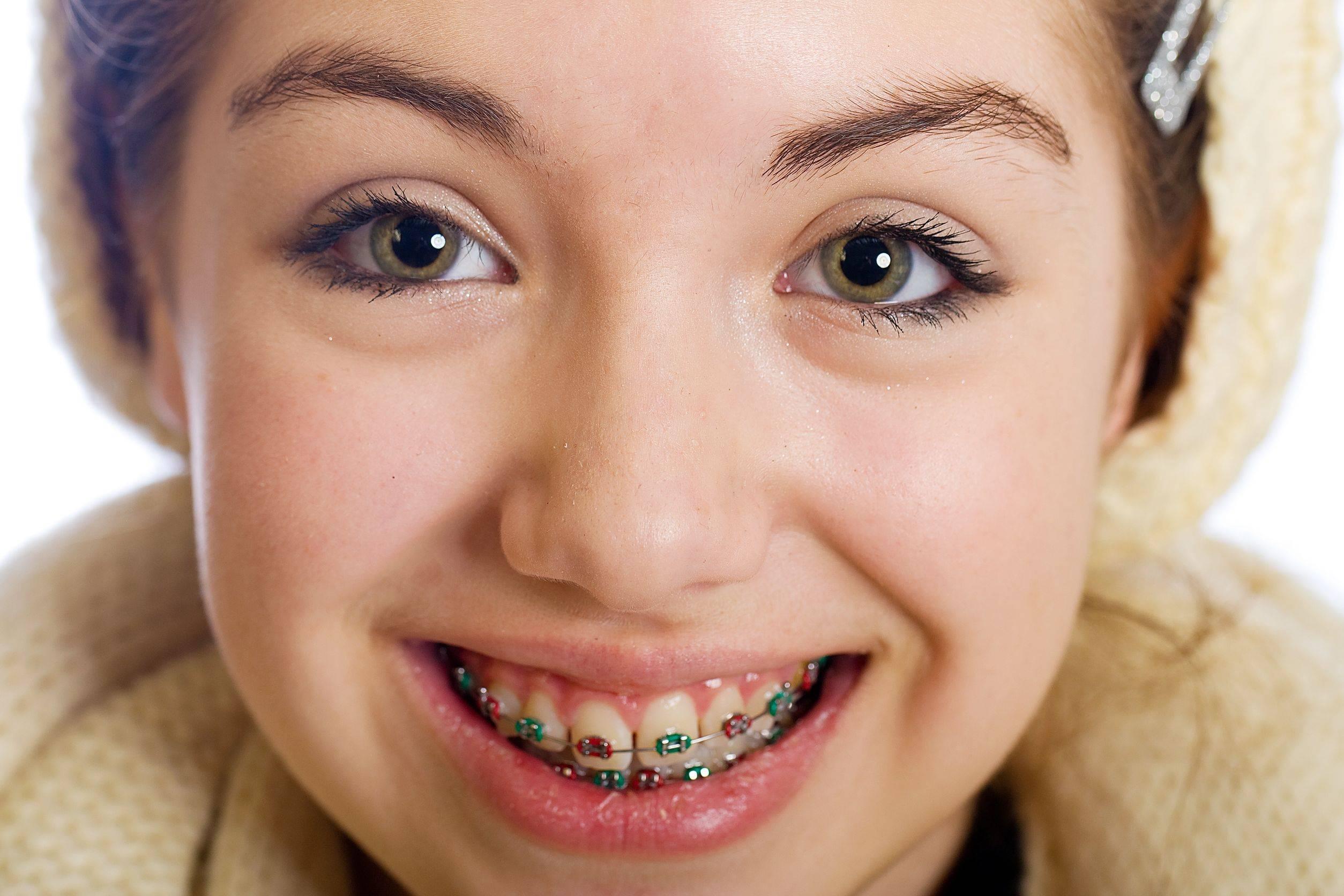 Брекеты для детей в москве – стоимость установки беректов подросткам и детям в детской стоматологии