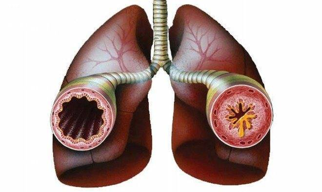 Отчего возникает и как лечить сухой приступообразный кашель