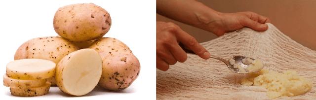 Лечение кашля компресс из картошки