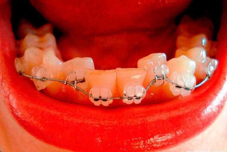 скоба на зубы