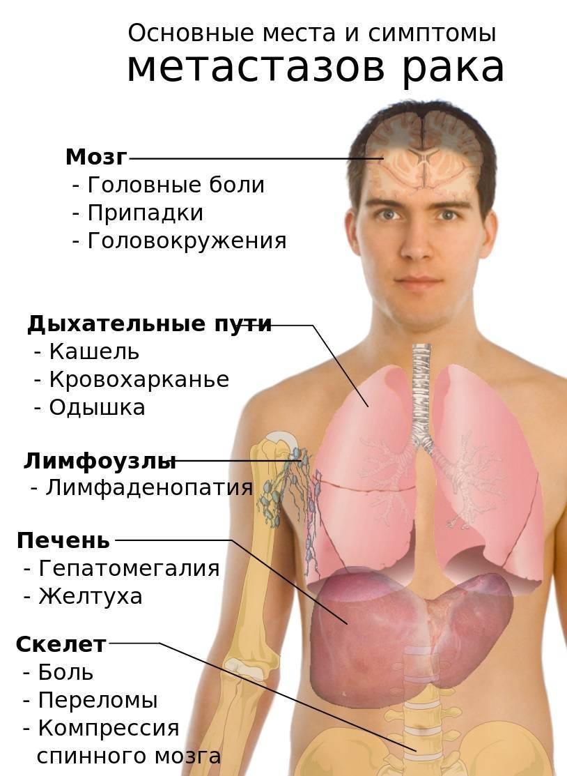 Как умирают больные раком