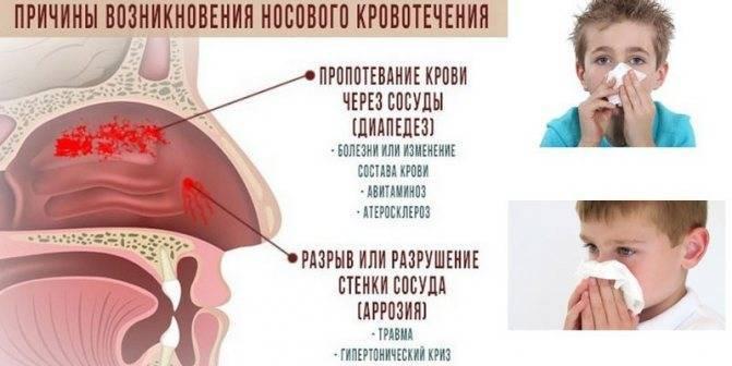 Ингаляции при боли в горле