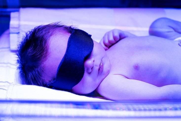 облучатель фототерапевтический для лечения желтухи новорожденных