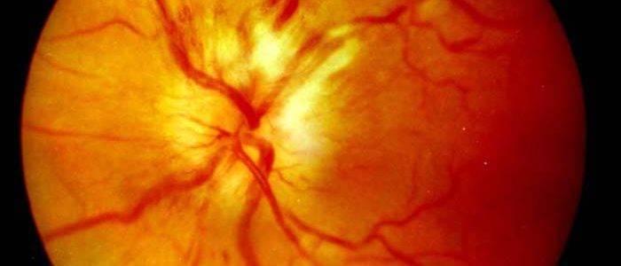 Неврит зрительного нерва рассеянный склероз — все о проблемах с глазами