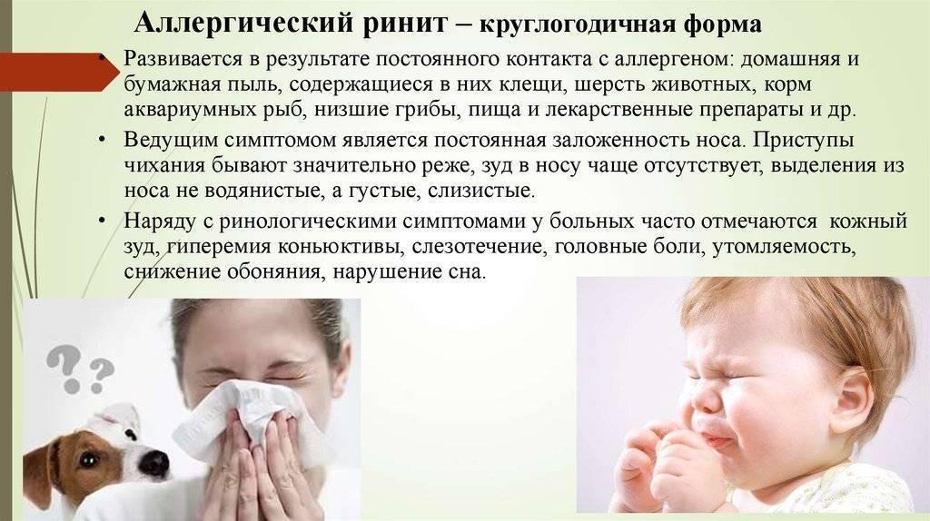 Признаки аллергического ринита у взрослых: методы лечения патологии