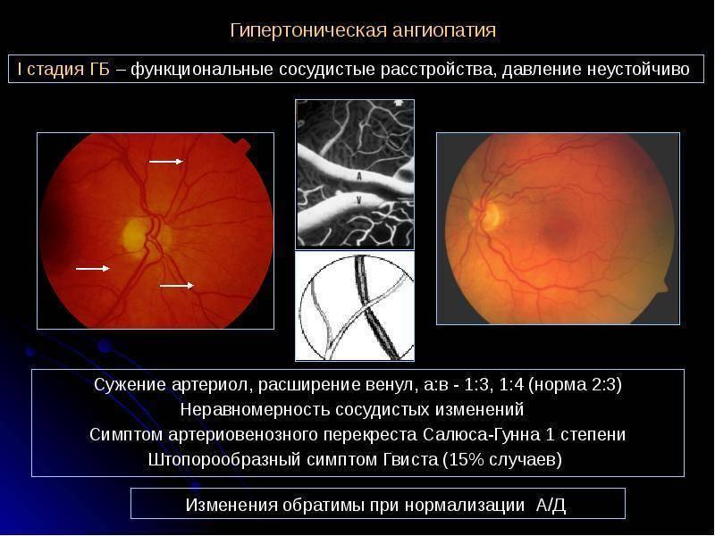 Почему развивается и как проявляется ангиопатия сетчатки глаза?