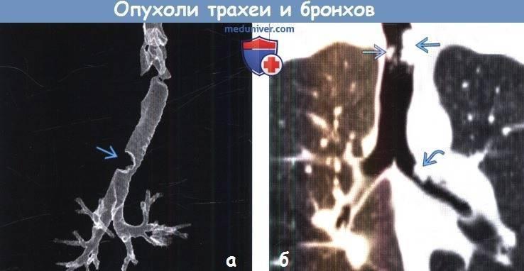 Основные признаки развития рака трахеи