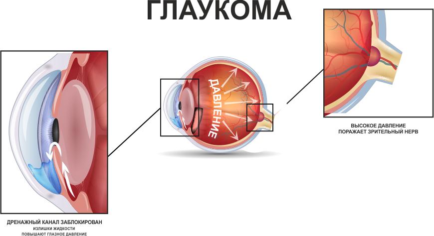 глаукома смертельна