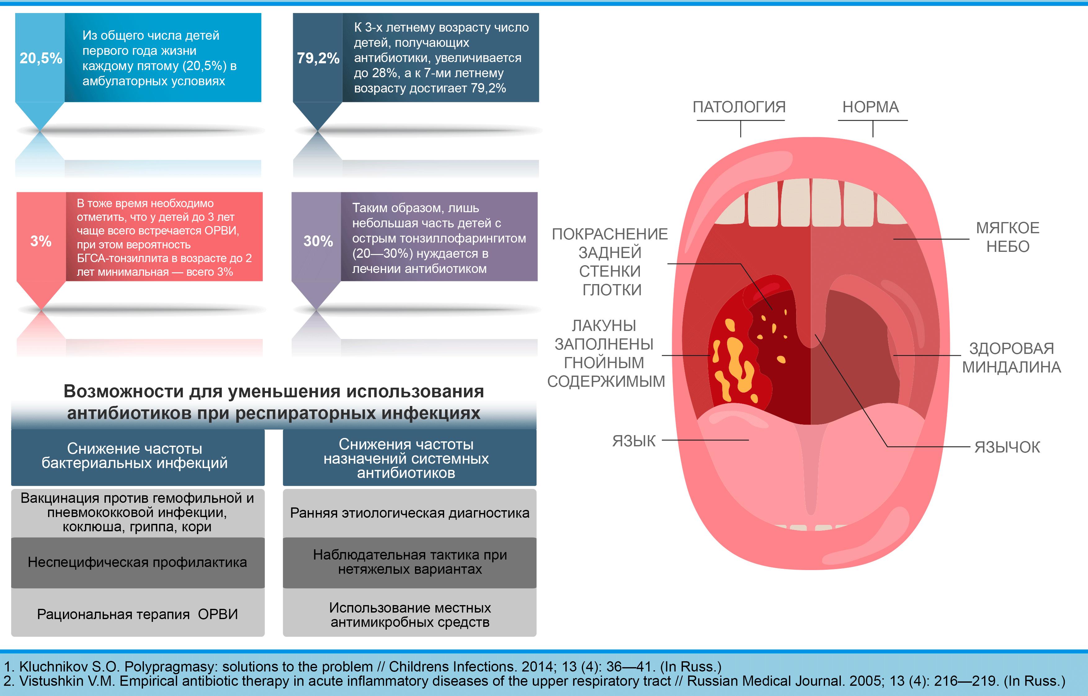 лечение ангины без антибиотиков