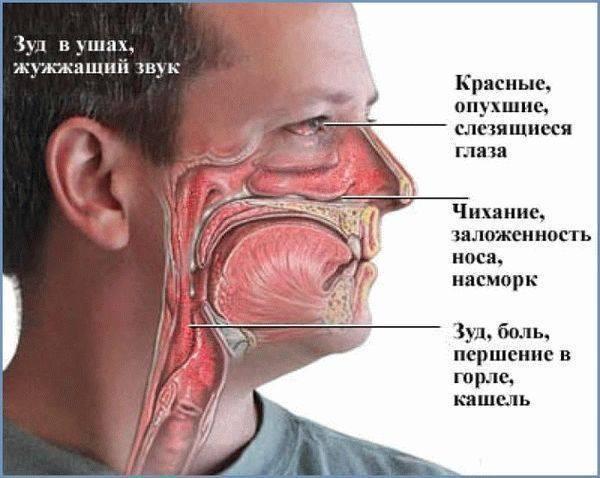 Как справиться с отеком носа аллергической природы