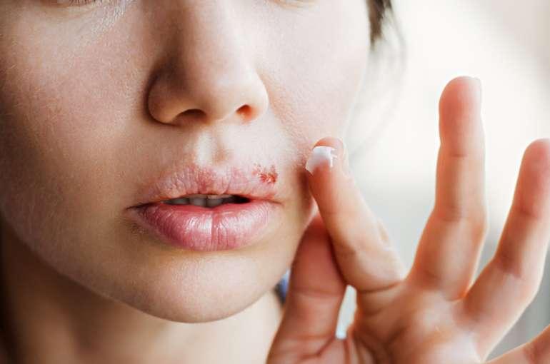 Что такое герпетическая инфекция: причины, симптомы и лечение у взрослых