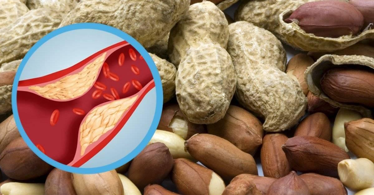 Орехи против холестерина