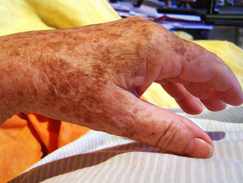 пятна на коже при заболеваниях печени