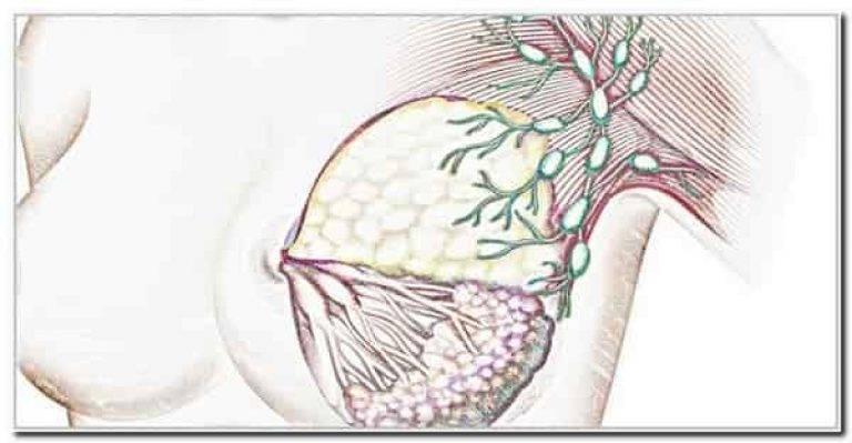 при мастопатии увеличиваются лимфоузлы
