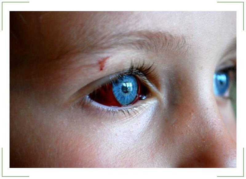 Что делать если в глазу лопнул капилляр?