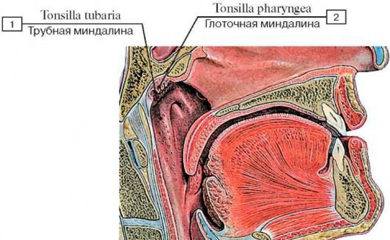 воспаление трубных миндалин