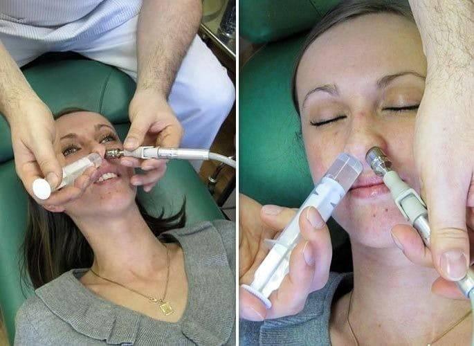 Анемизация слизистой носа при кровотечениях