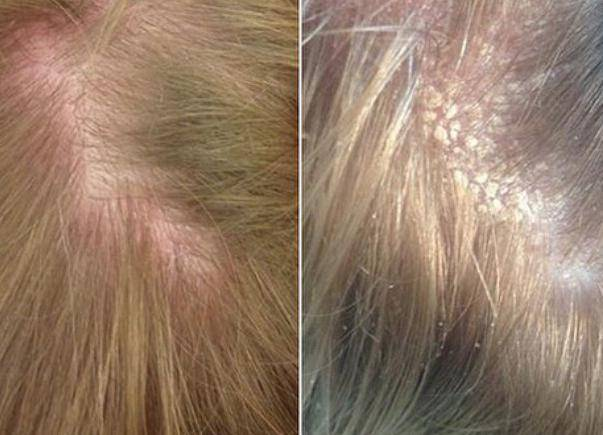 Методы лечения демодекоза на волосистой части головы