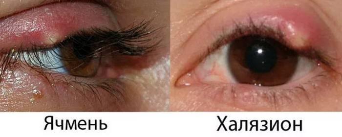 шишка на глазу у ребенка