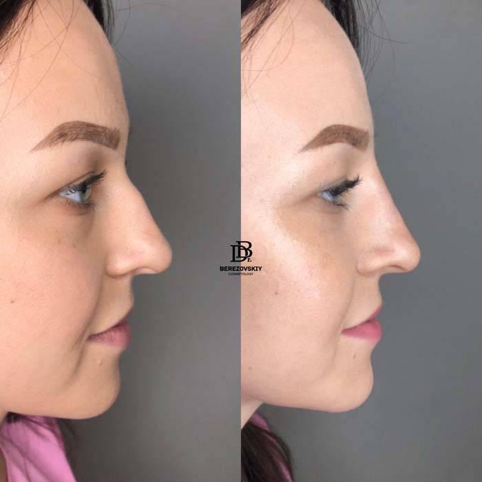 коррекция формы носа без операции