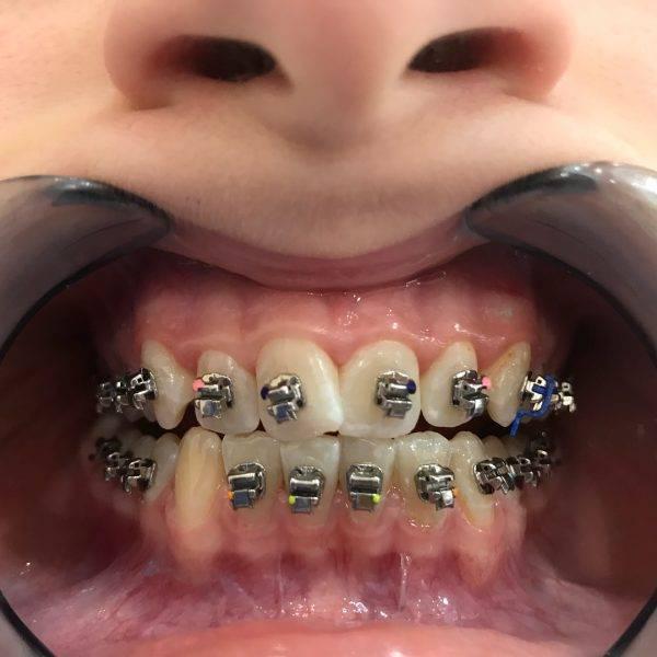 Лечение брекетами без удаления зубов